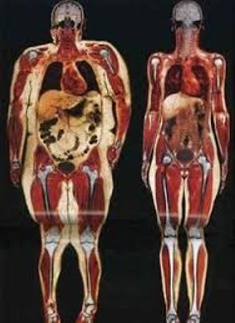 #UnderstandingFitness: Fat Vs Muscle
